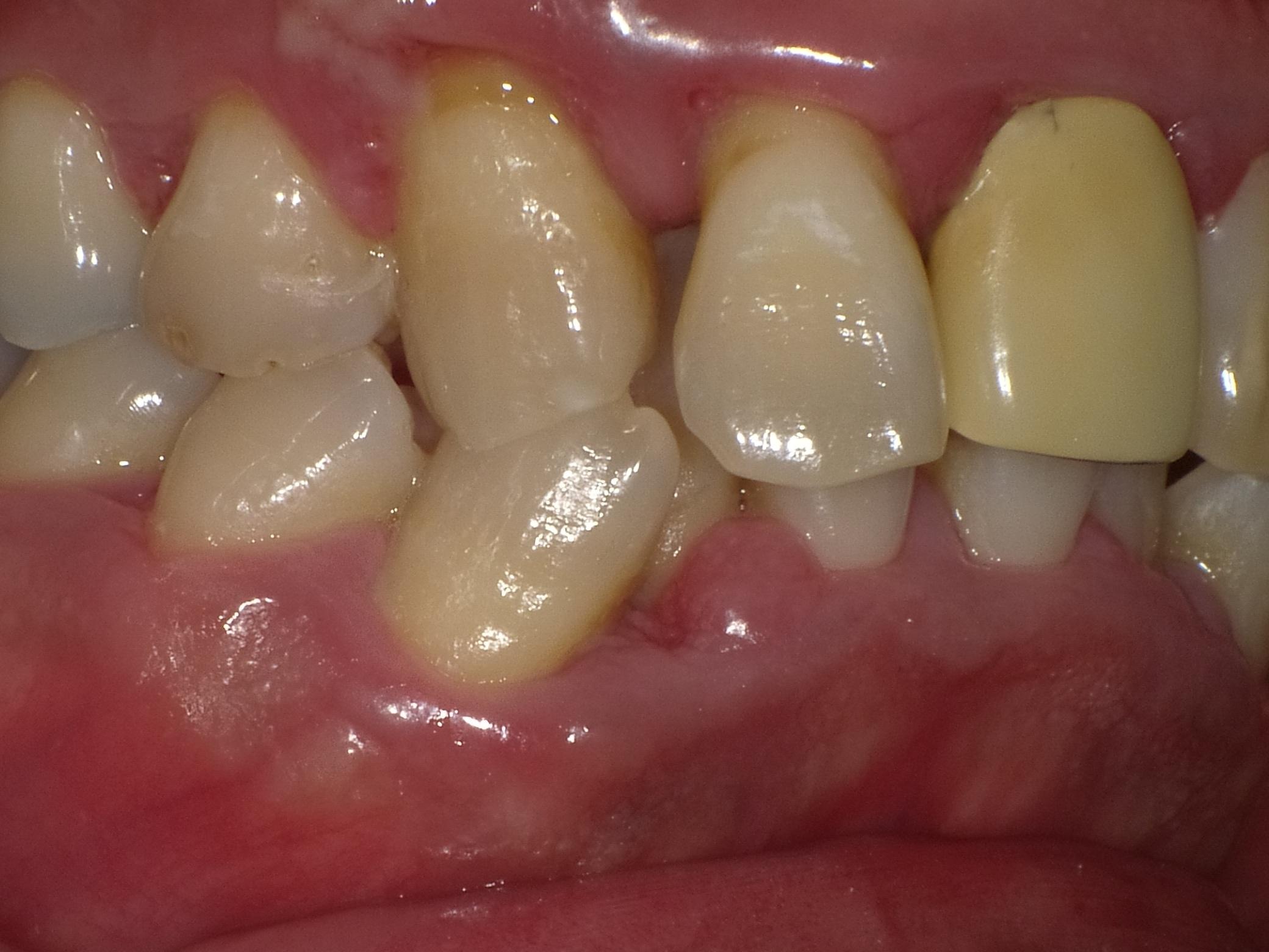 漏 歯槽 膿
